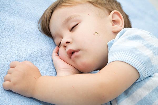 Cách xử lý khi trẻ em bị côn trùng cắn